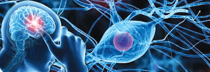 Neurology and Neurological Disorder